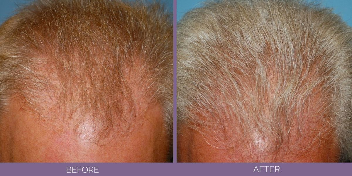 1001_side_hairreplacement_top