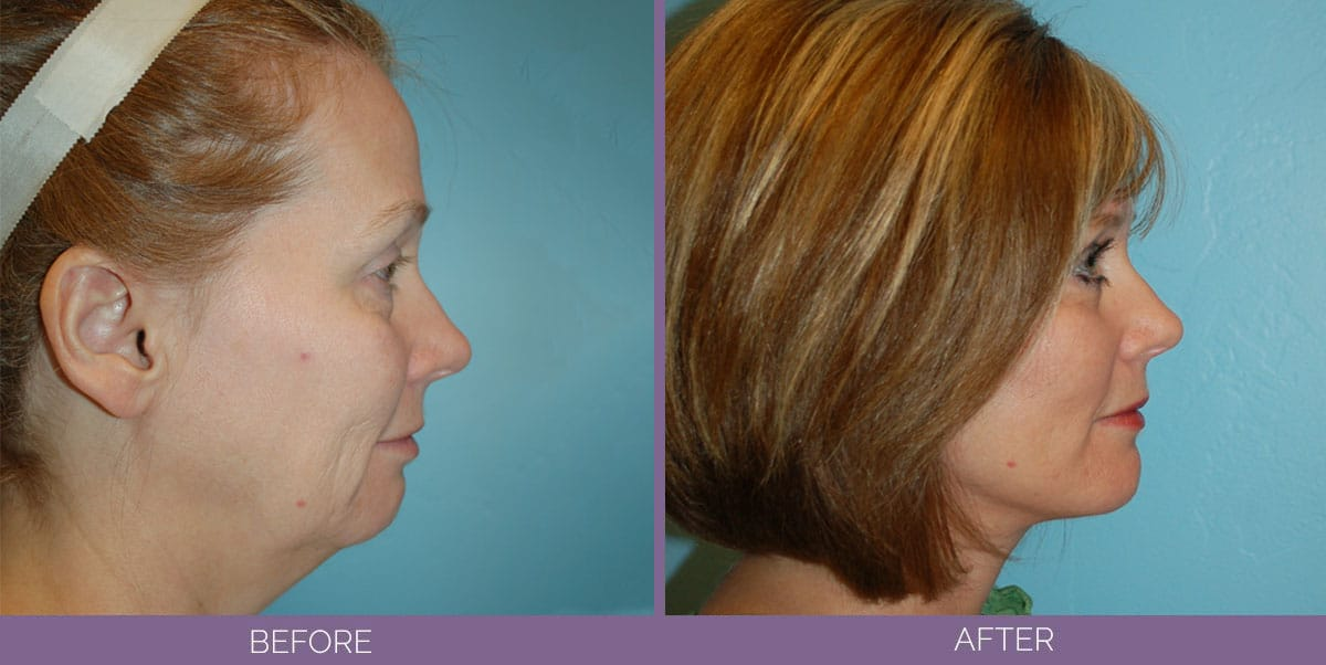 1008_Swiftlift-Facelift-Before-And-After3