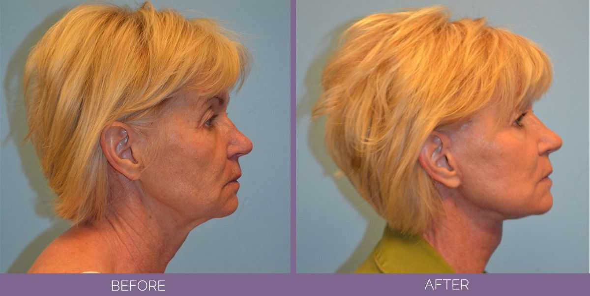 1015_SwiftLift_w_extension_Drake_Vincent_Facelift_Utah_sideview