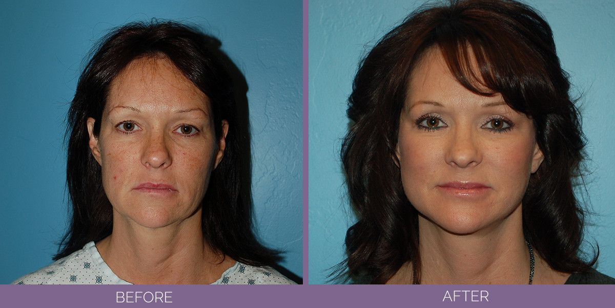 1021_SwiftLift_w_extension_Drake_Vincent_Facelift_Utah_front