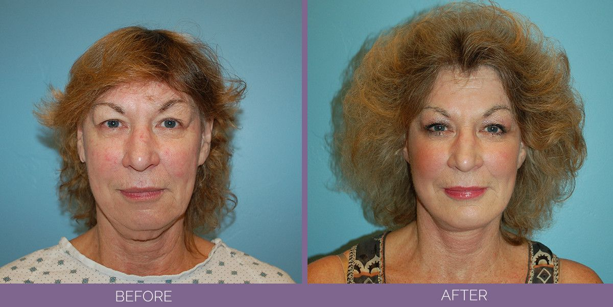 1022_SwiftLift_w_extension_Chin_Implant_Drake_Vincent_Facelift_Utah_faceview