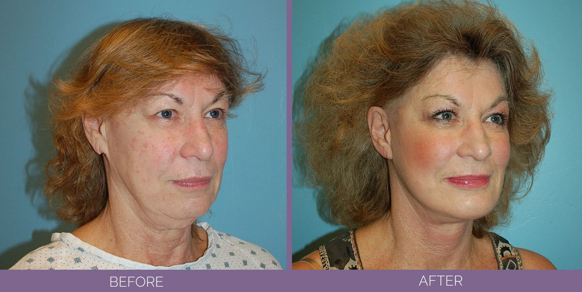 1022_SwiftLift_w_extension_Chin_Implant_Drake_Vincent_Facelift_Utah_sideview