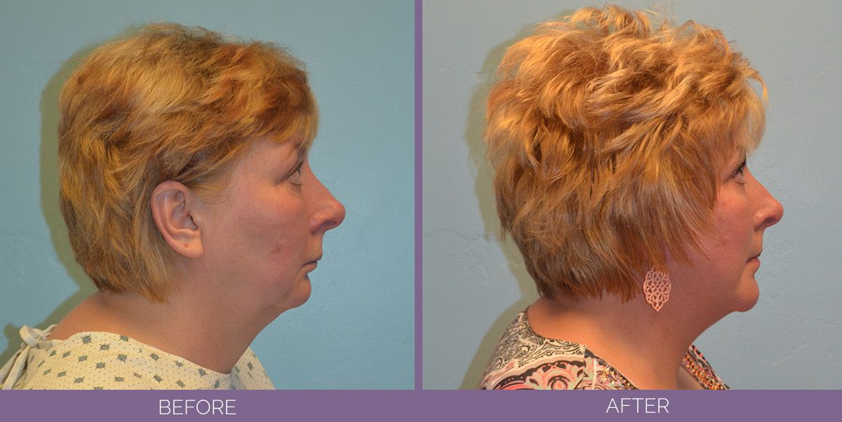 1025_SwiftLift_w_Chin_Implant_Drake_Vincent_Facelift_Utah_sideview
