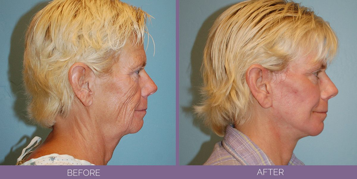 1029_SwiftLift_CO2_full_face_fat_grafting_Drake_Vincent_Facelift_Utah_sideview