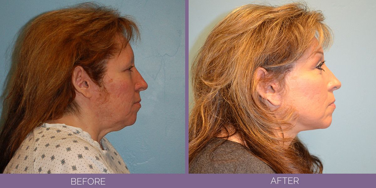 1033_SwiftLift_upper_and_lower_blephs_Submental_lipo_chemical_peel_on_lower_lids_Drake_Vincent_Facelift_Utah_sideview