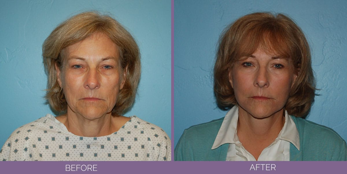 1035_Swiftlift-Facelift-Before-And-After4