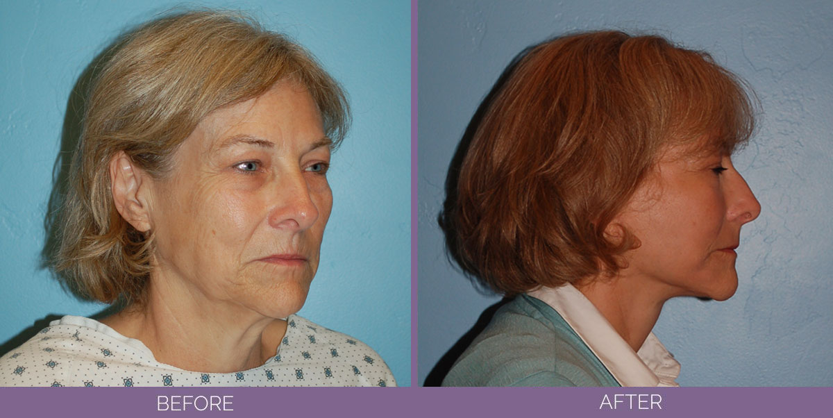 1035_Swiftlift-Facelift-Before-And-After5