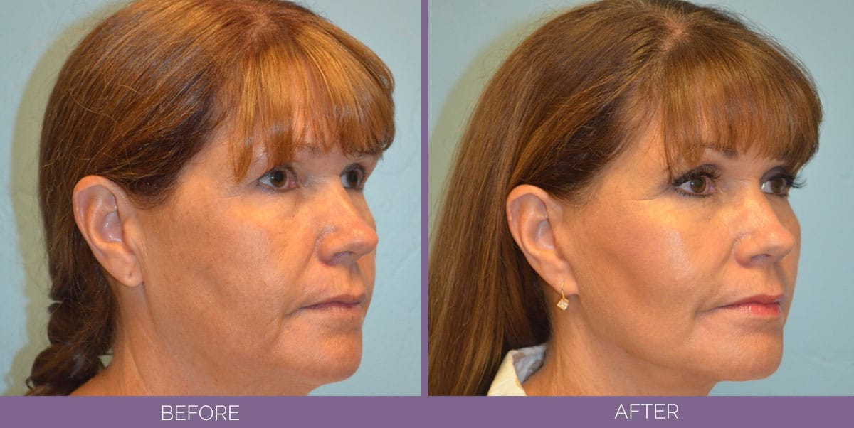 1036_Swiftlift-Facelift-Before-And-After6