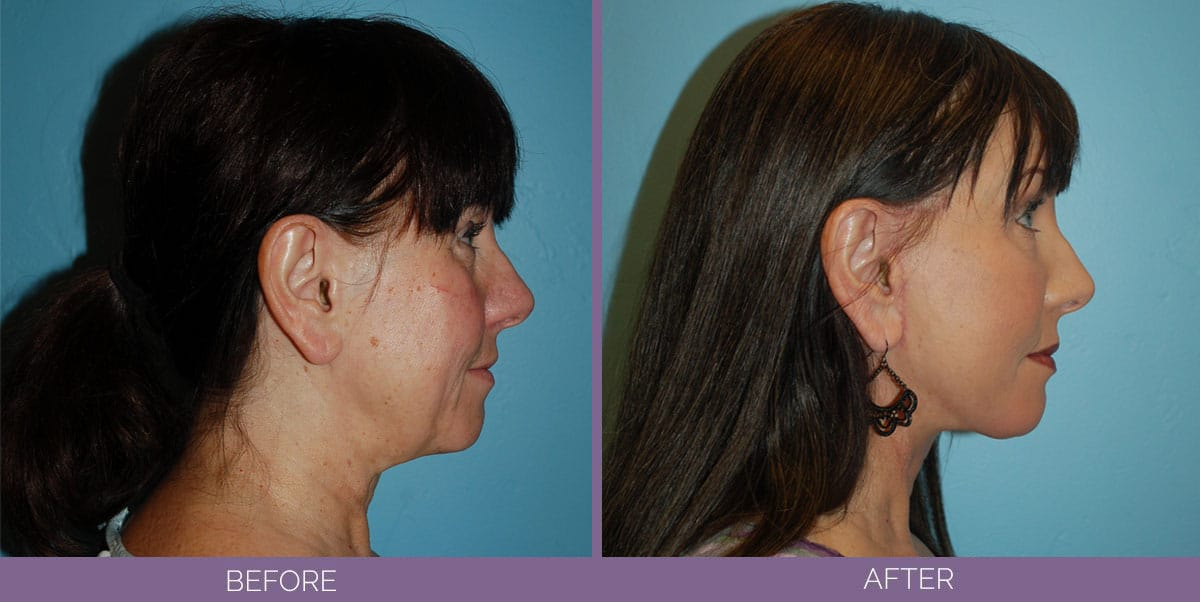 1037_Swiftlift-Facelift-Before-And-After10