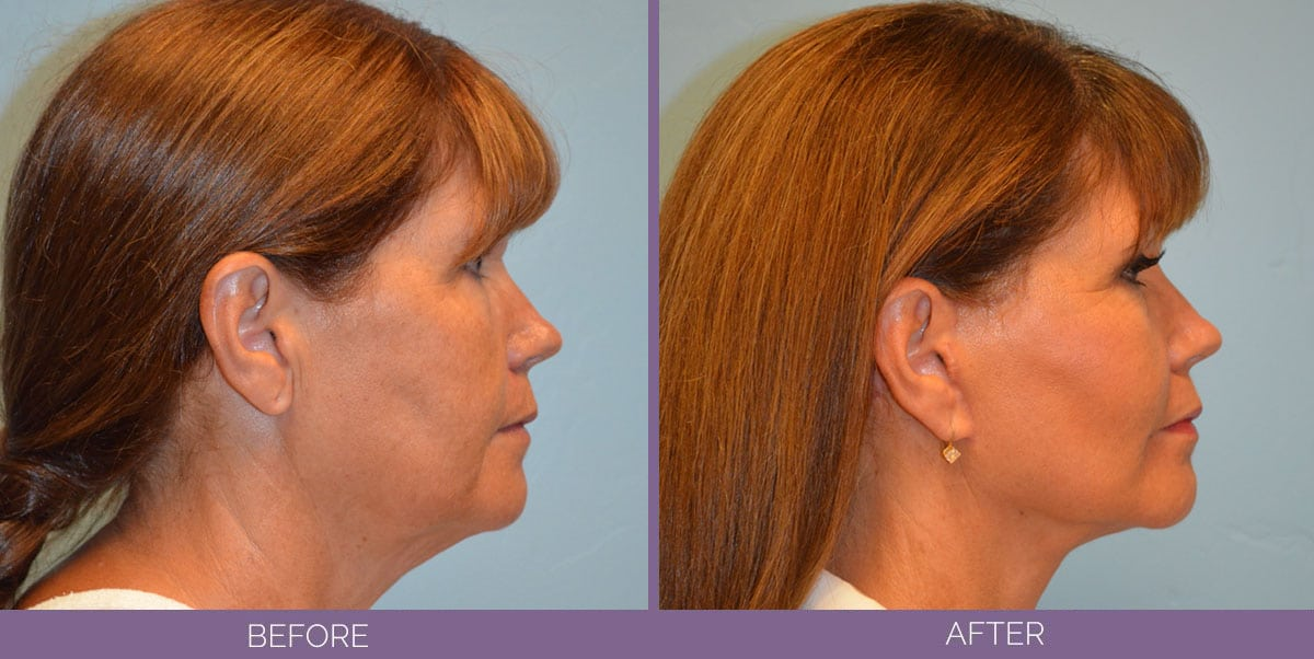 1037_Swiftlift-Facelift-Before-And-After7