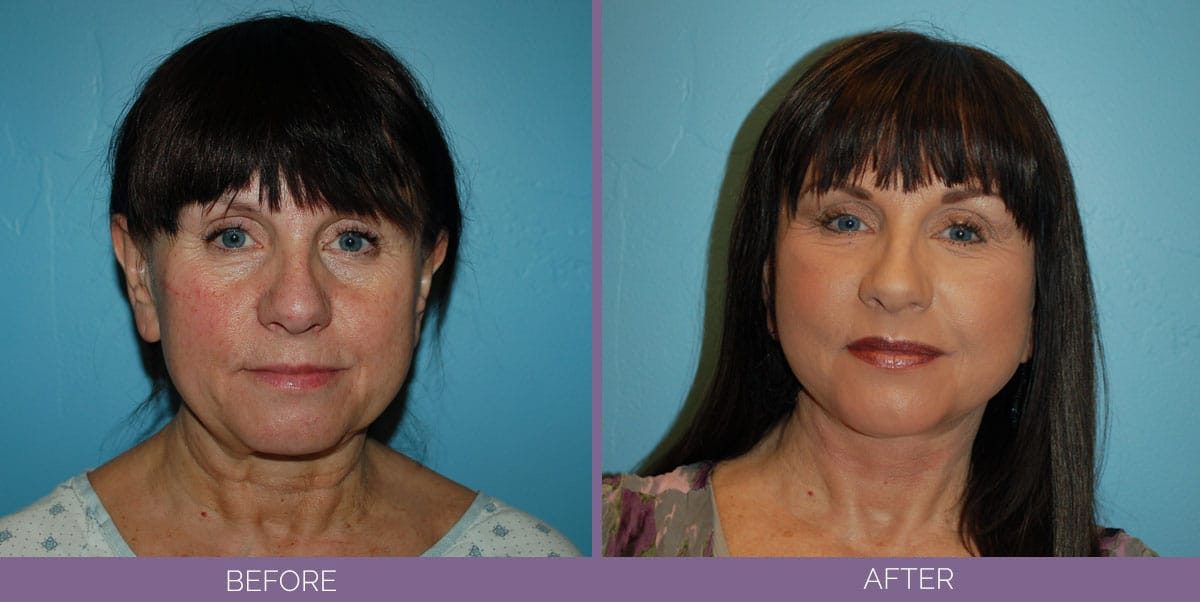 1037_Swiftlift-Facelift-Before-And-After8