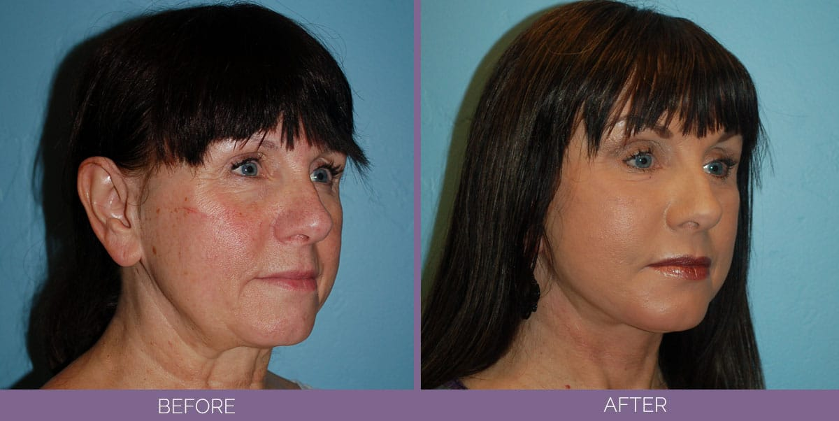 1037_Swiftlift-Facelift-Before-And-After9