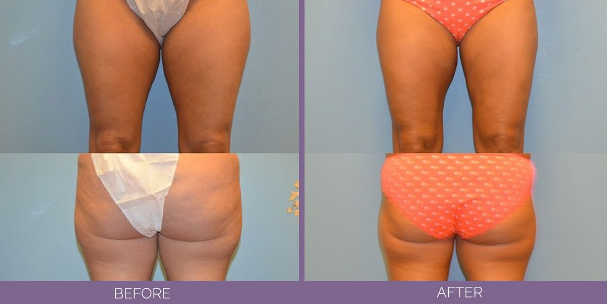 1501_Thigh_liposuction_front