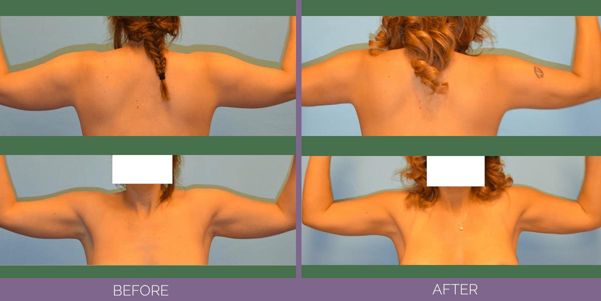 1501_arm_liposuction_front_back