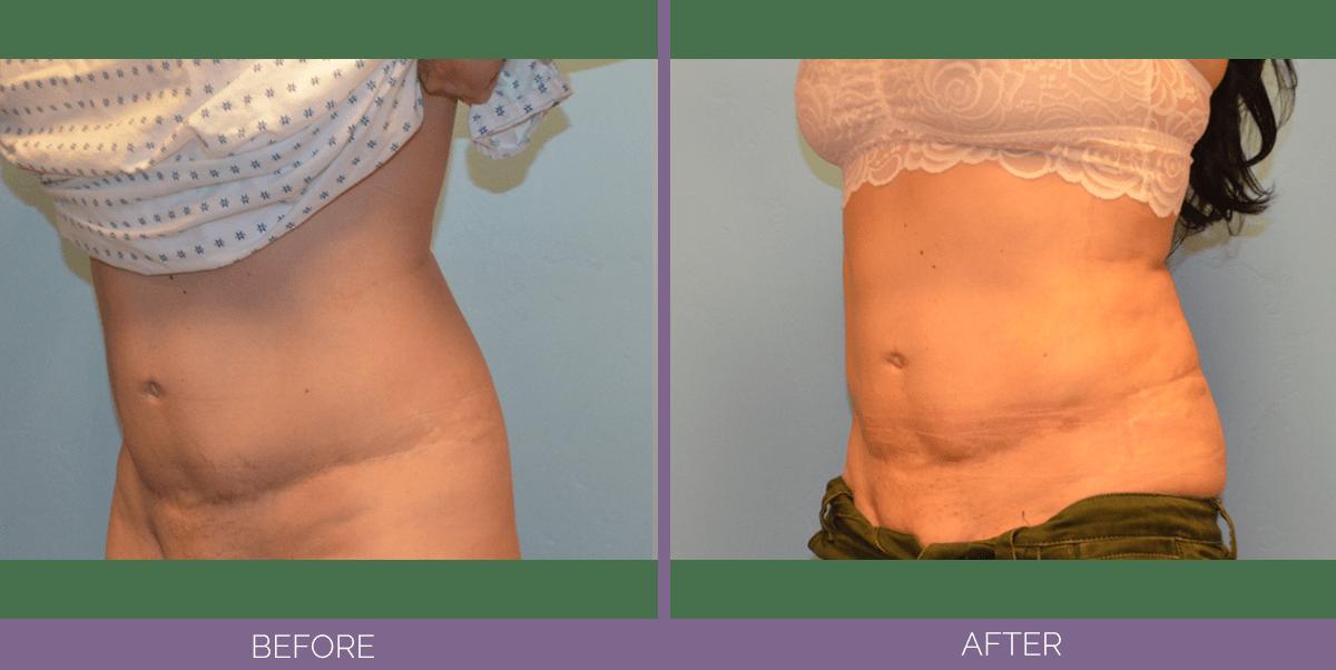 1503_right_liposuction