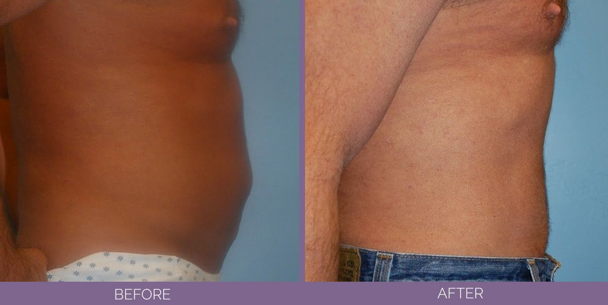1807_tummytuck_side