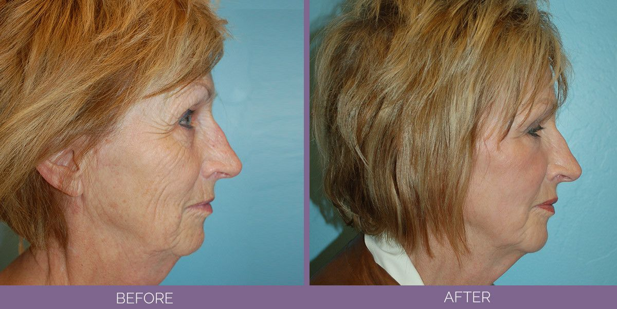 stem cell fat transfer facelift
