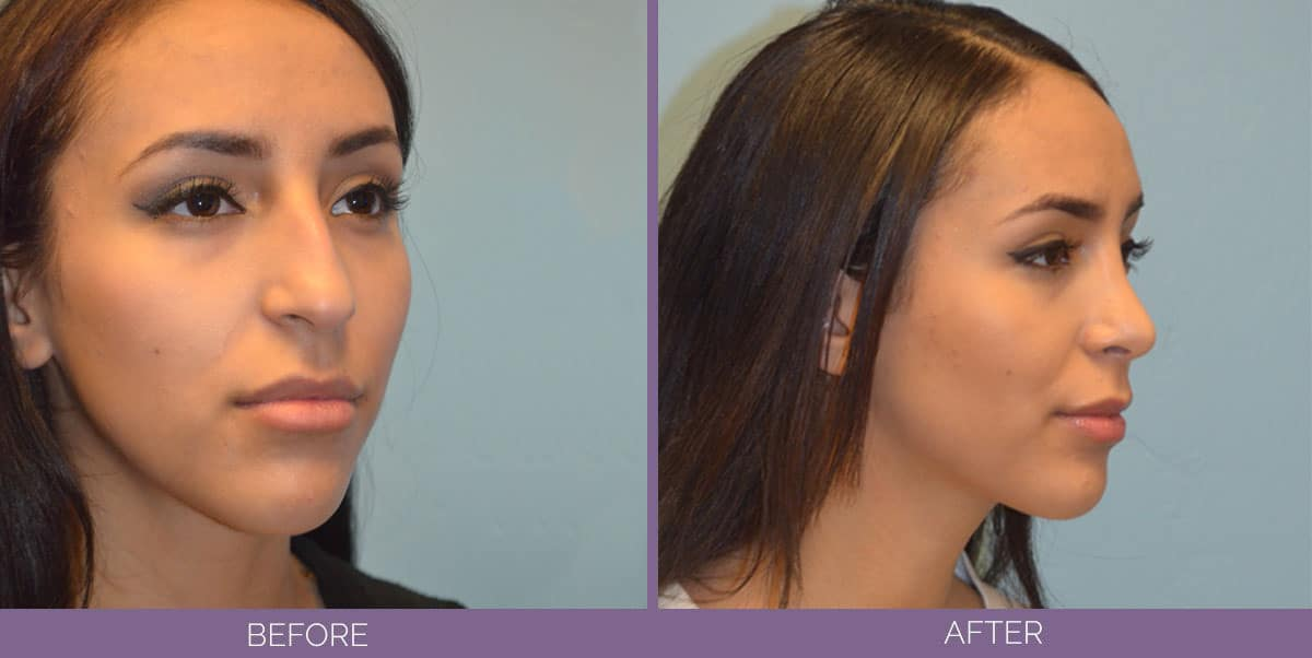 4504_Facial-Surgery-Rhinoplasty-before-and-After-3-