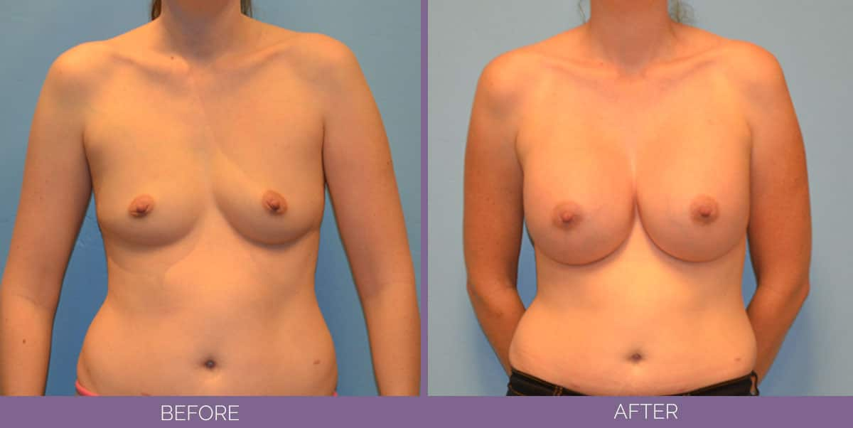9010_breast-augmentation-salt-lake-city-before-and-after