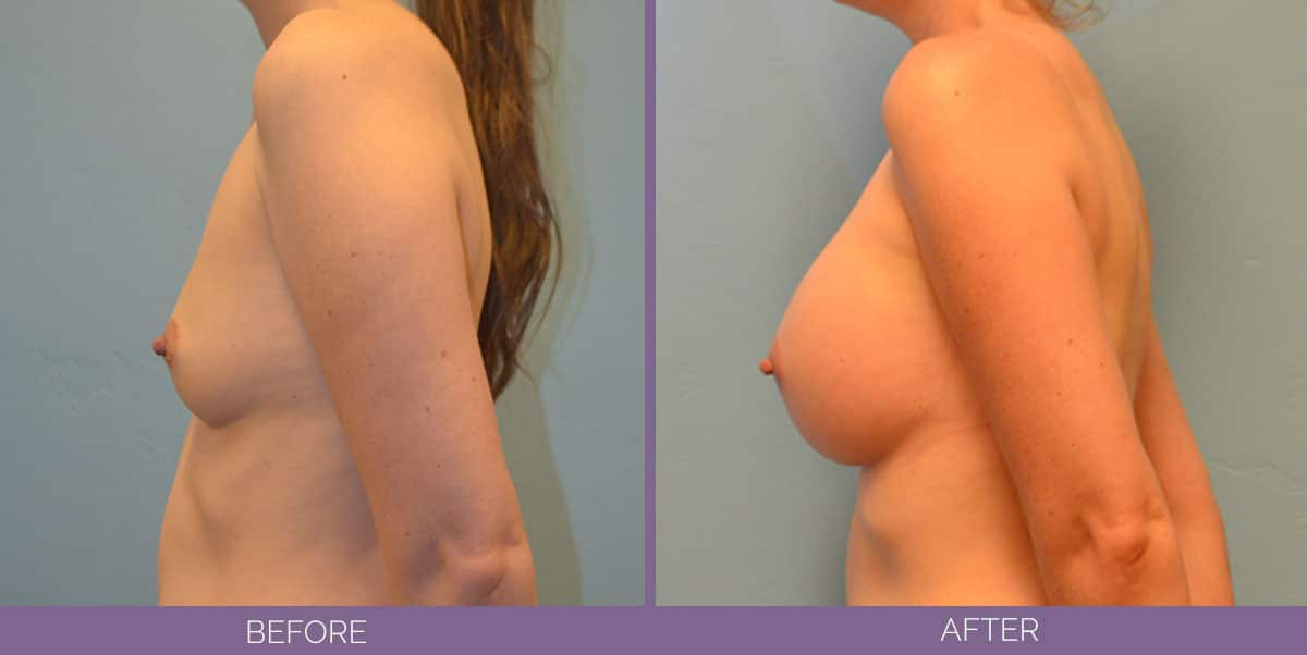 9010_breast-augmentation-salt-lake-city-before-and-after1