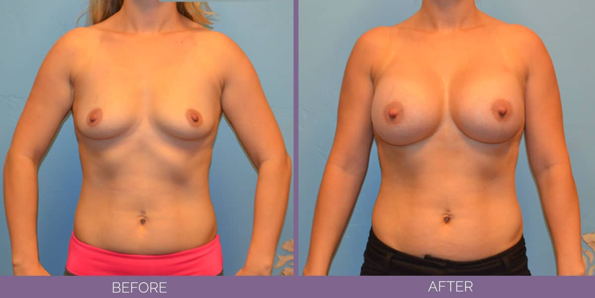9011_breast-augmentation-salt-lake-city-before-and-after2