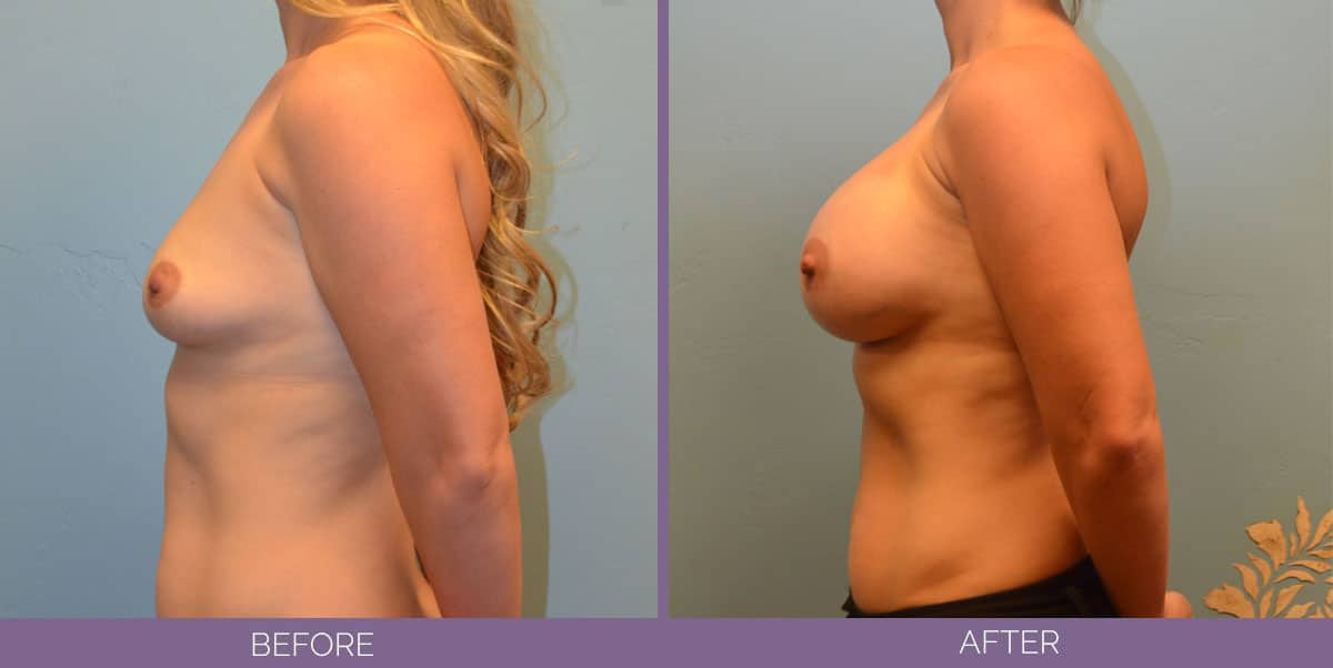 9011_breast-augmentation-salt-lake-city-before-and-after3
