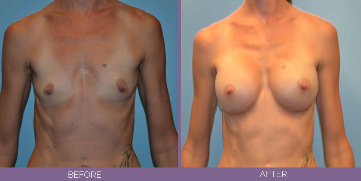 9012_breast-augmentation-salt-lake-city-before-and-after4