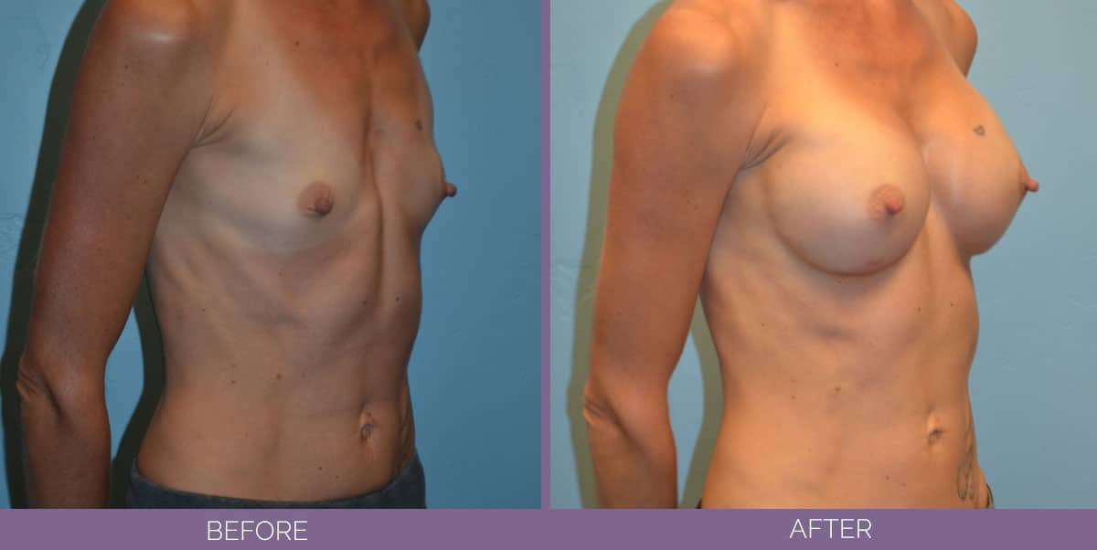9012_breast-augmentation-salt-lake-city-before-and-after5