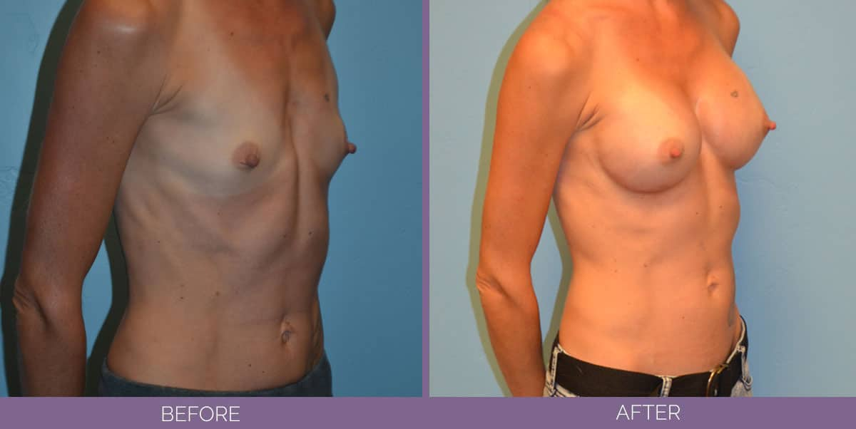 9012_breast-augmentation-salt-lake-city-before-and-after6