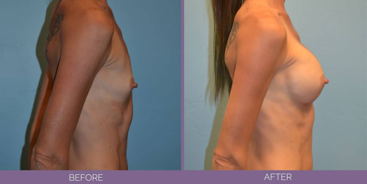 9012_breast-augmentation-salt-lake-city-before-and-after7