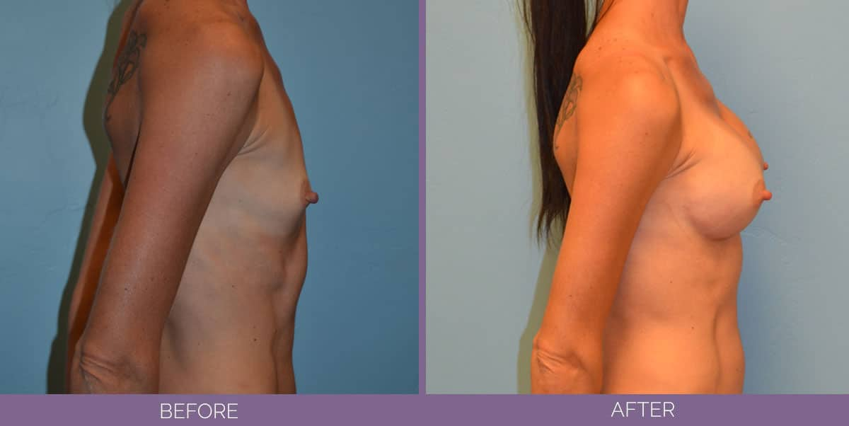 9012_breast-augmentation-salt-lake-city-before-and-after8