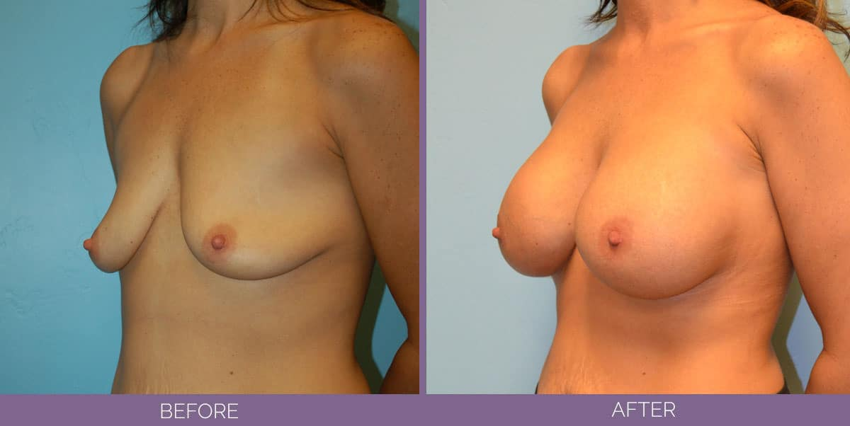 9013_9013_breast-augmentation-salt-lake-city-before-and-after9