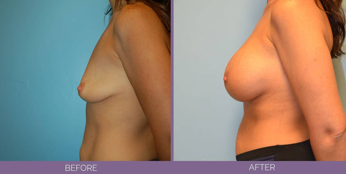 9013_breast-augmentation-salt-lake-city-before-and-after10