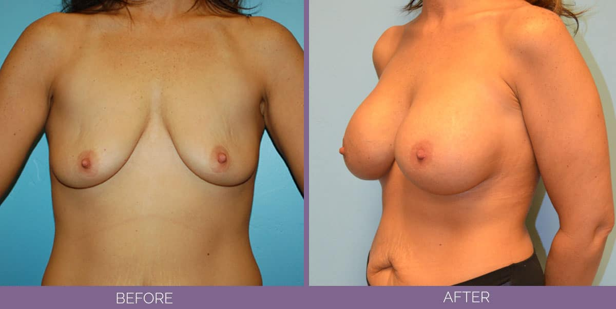 9013_breast-augmentation-salt-lake-city-before-and-after11