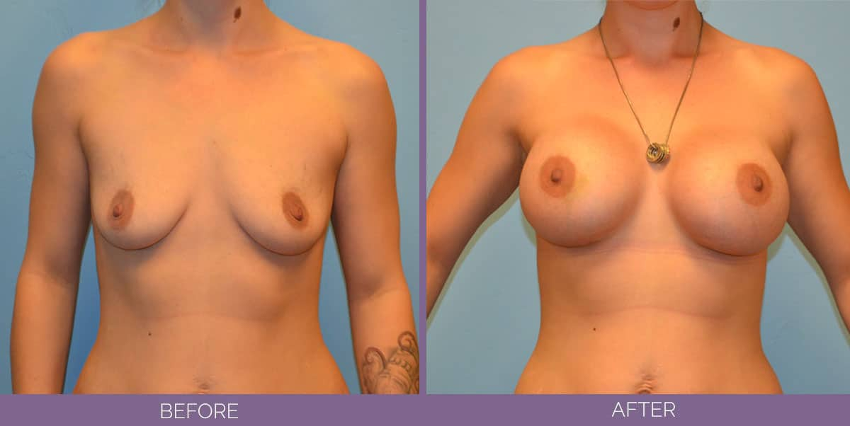 9014_breast-augmentation-salt-lake-city-before-and-after12