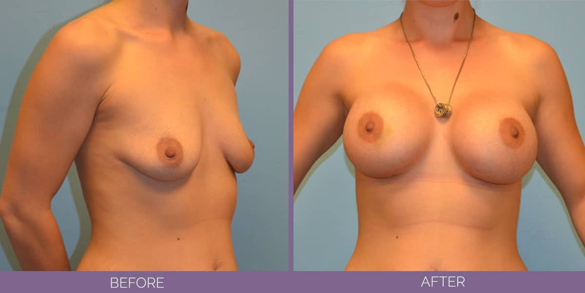 9014_breast-augmentation-salt-lake-city-before-and-after13