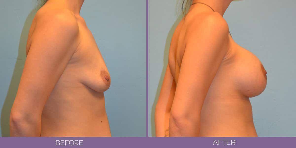 9014_breast-augmentation-salt-lake-city-before-and-after14
