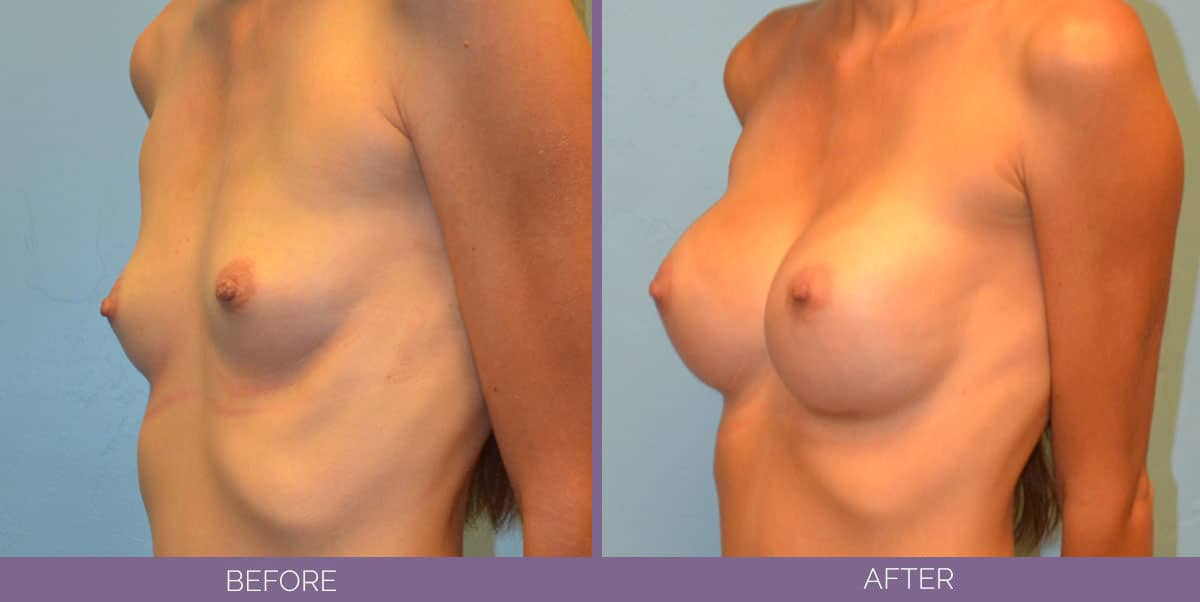 9015_breast-augmentation-salt-lake-city-before-and-after16