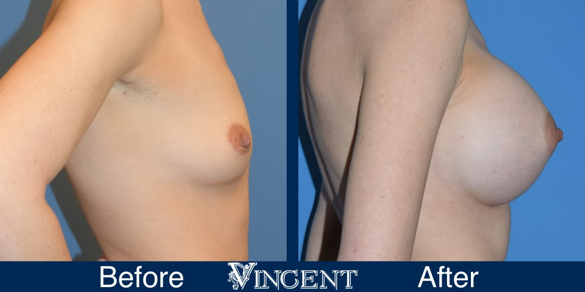 breast implants before and after utah