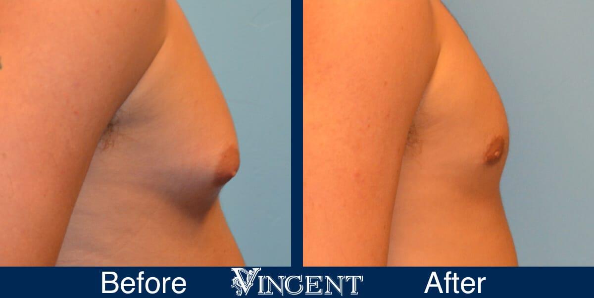 gynecomastia before after utah