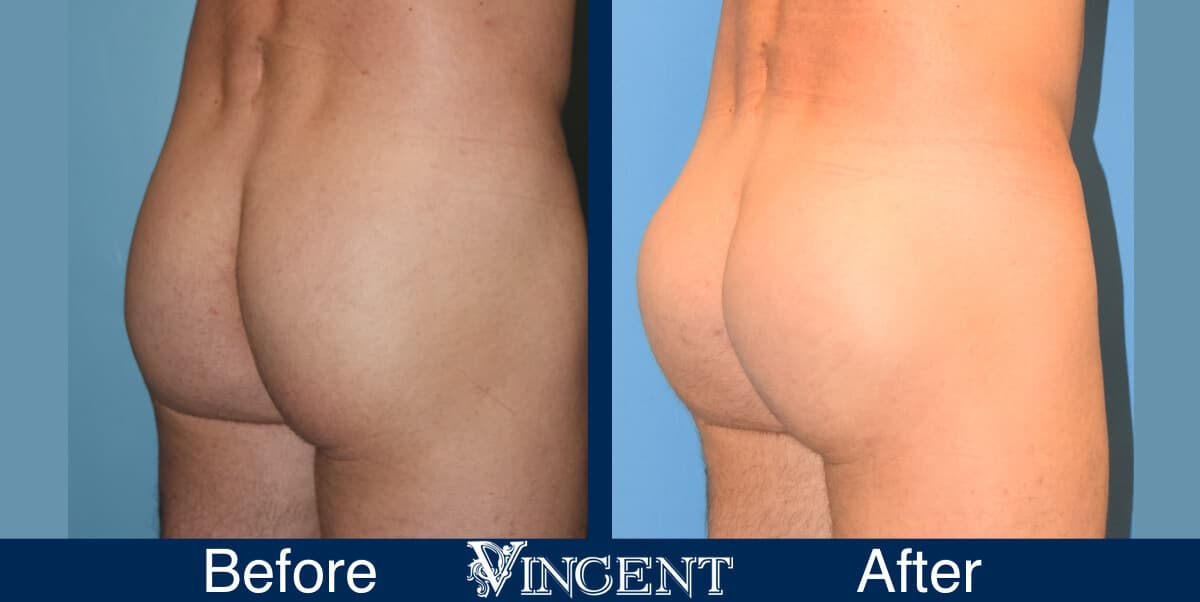 Gluteal-Implants-Utah-right