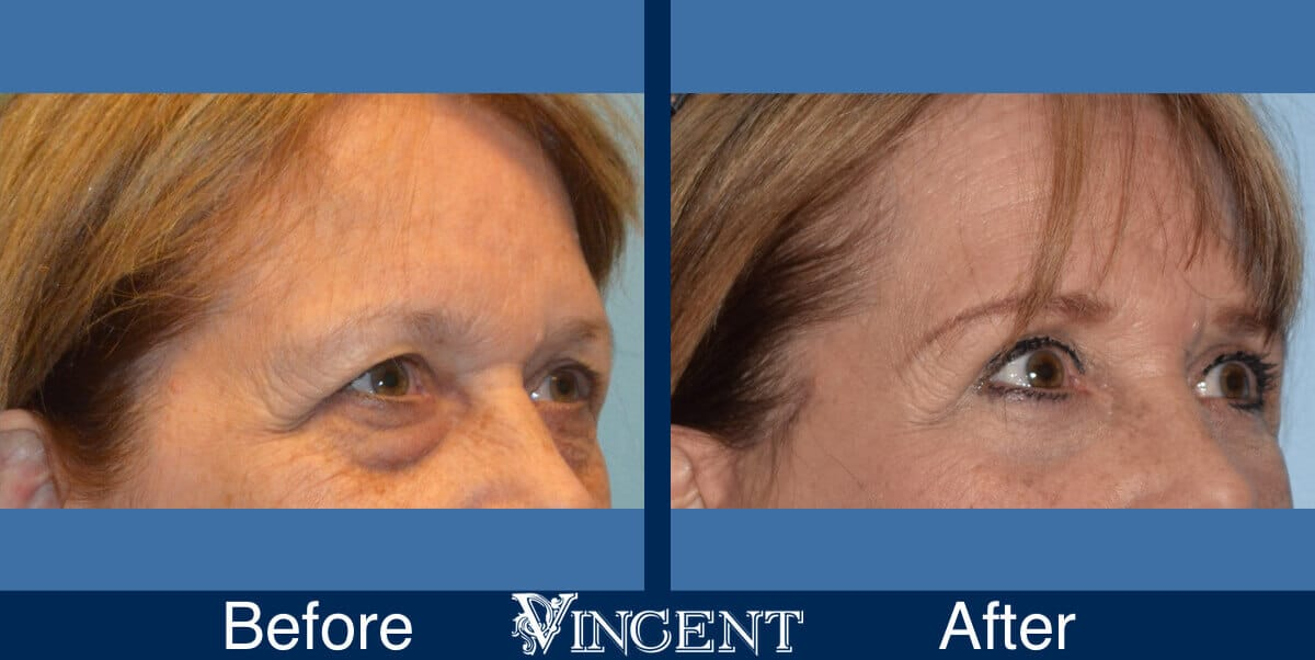 blepharoplasty before and after utah