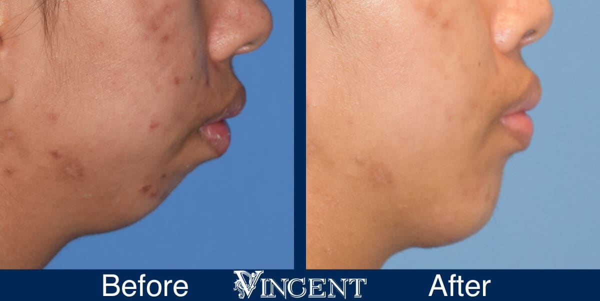 chin implant before and after female utah