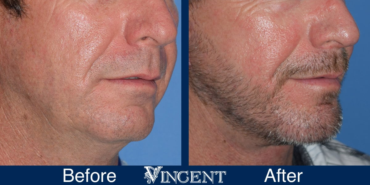 chin implant before and after male utah