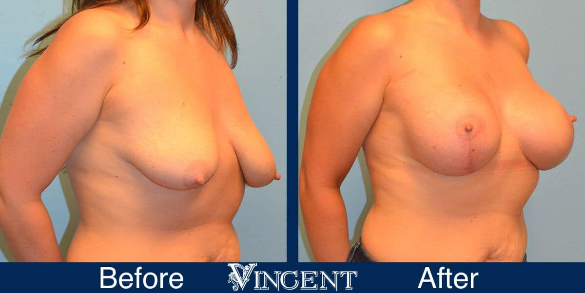breast lift before and after utah