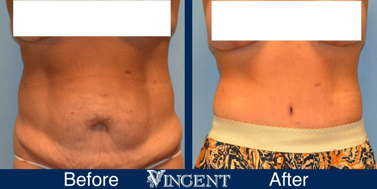 tummy tuck before and after photo utah