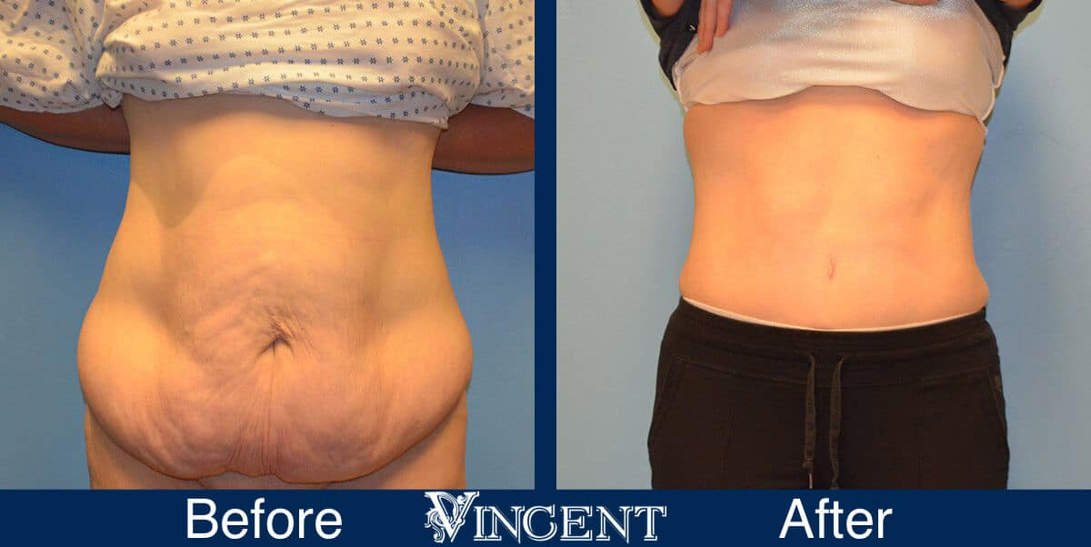 tummy tuck before and after photo abdominoplasty utah