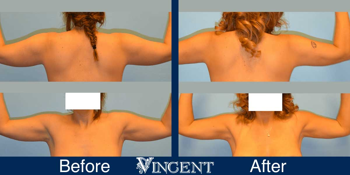 arm liposuction before and after utah