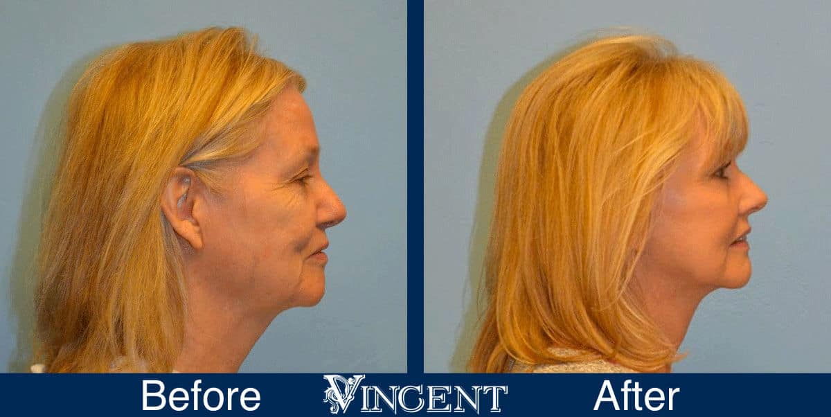 utah facelift before and after female
