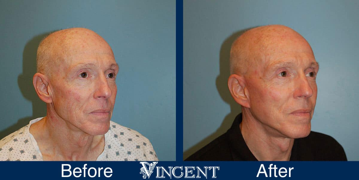 utah facelift before and after male